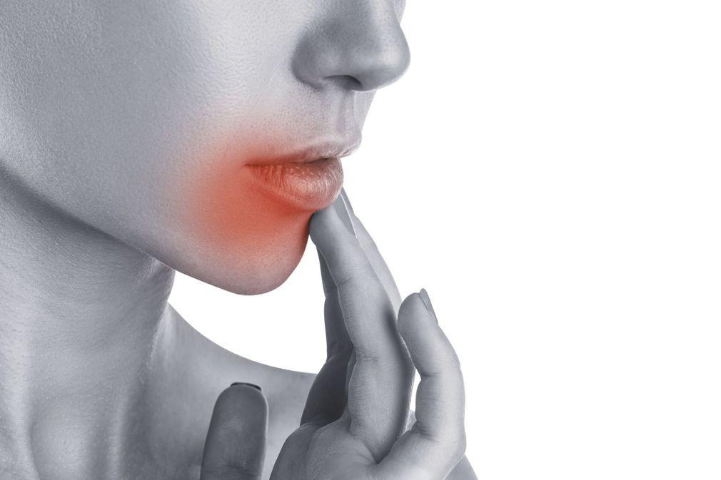 Bouton de fièvre : 10 remèdes naturels efficaces et rapides