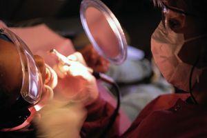 Les femmes souffrant d'infection chronique des gencives ont un risque accru de cancer