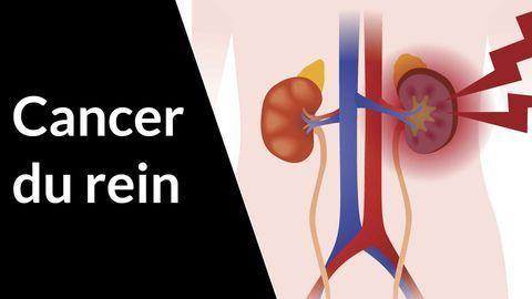 Symptômes et traitements du cancer du rein