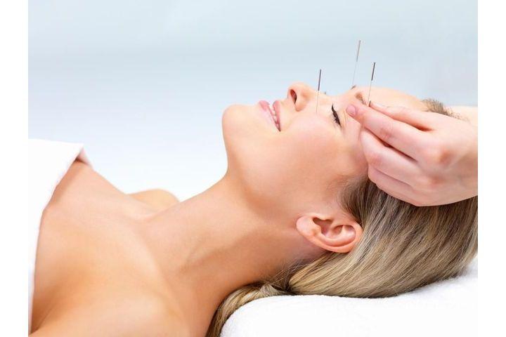Accoucher avec l'acupuncture