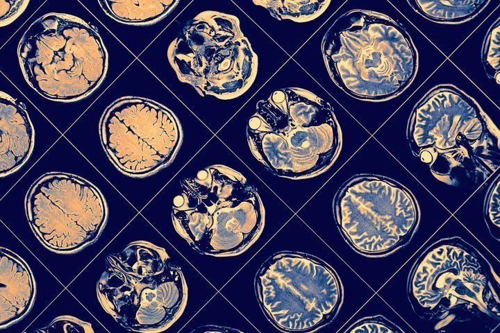Etat de la recherche sur la schizophrénie