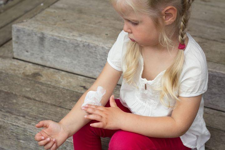Les Differents Visages De L Allergie Cutanee Doctissimo