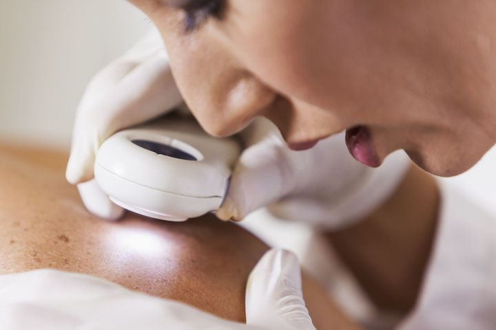 Ces cancers de la peau dans des zones étranges
