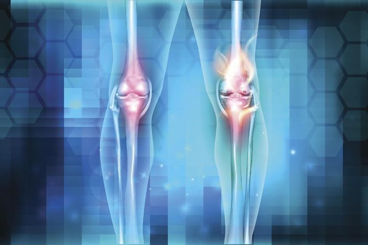 Soulager - Genou douloureux: ses causes et ses traitements - Planete ... | Acide hyaluronique crème