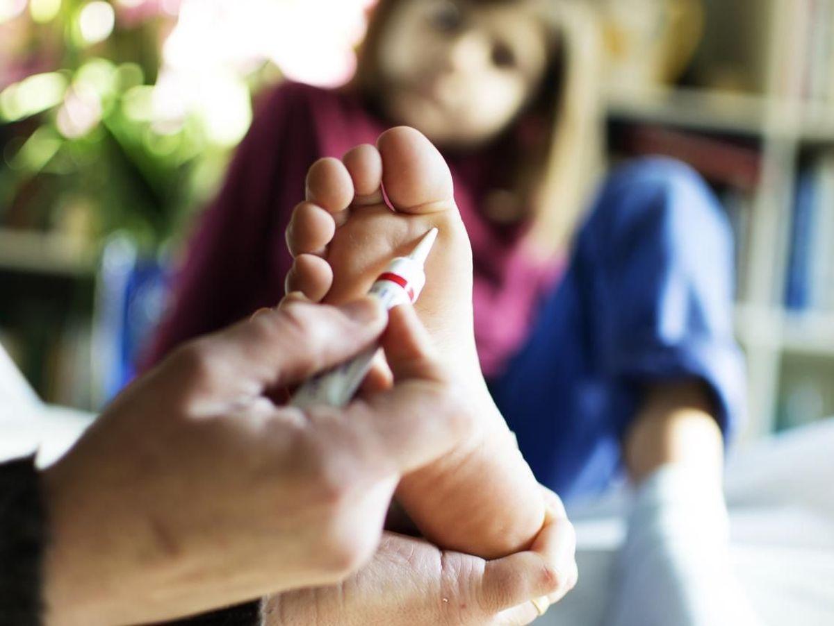 hpv verrue pied)