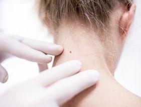 Cancer de la peau : reconnaître un grain de beauté suspect