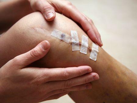 Rupture du ligament croisé du genou et ligamentoplastie