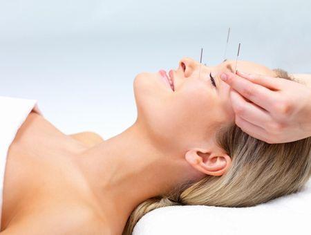 Préparer son accouchement avec l'acupuncture