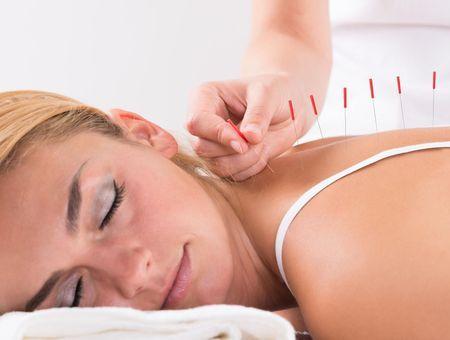 L'acupuncture : une arme antistress