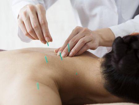 L'acupuncture est-elle efficace pour arrêter de fumer ?