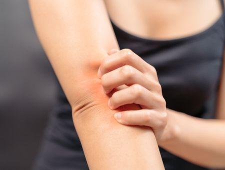 Les différentes formes de l'allergie cutanée