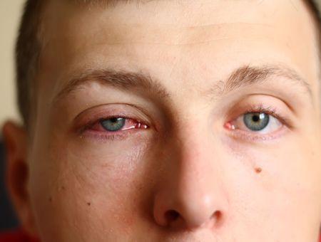 Conjonctivite : symptômes, causes et et traitements