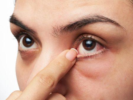 Kératite : causes, symptômes et traitements