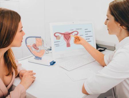 Cancer du col de l'utérus : symptômes, diagnostic et traitement