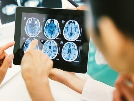 Les tumeurs cérébrales (tumeurs intracrâniennes de l'adulte)
