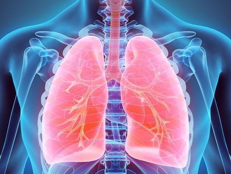 Le cancer primitif des bronches