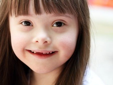 La trisomie 21 (mongolisme ou syndrome de Down)