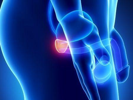 Adénome de la prostate : symptômes et traitements