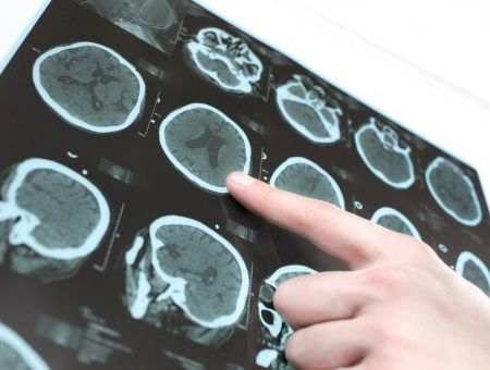 Les accidents vasculaires cérébraux ischémiques