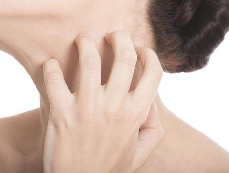 Tout savoir sur l'eczéma : les différents types, les symptômes et les traitements