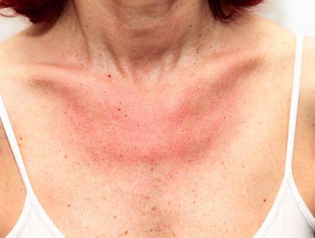 Eczéma photosensible : signes, prévention, traitement