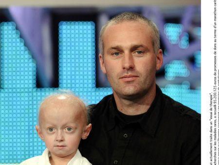 Nouveaux espoirs face à la progeria