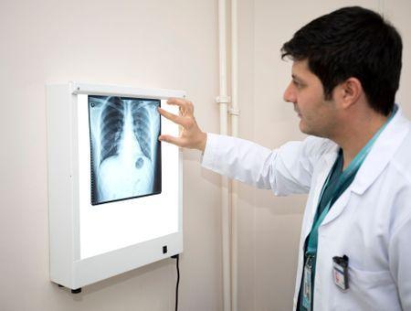 Le pneumologue, spécialiste des bronches et des poumons
