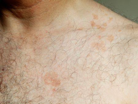 Pityriasis versicolor : des symptômes aux traitements