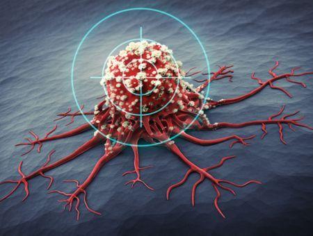 Un nouveau médicament efficace pour stopper les cellules cancéreuses lorsque la chimiothérapie a échoué