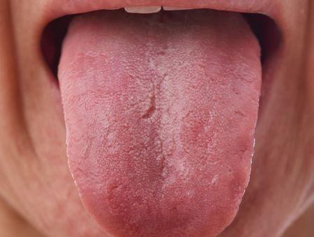 """Coronavirus : un épidémiologiste rapporte le symptôme de la langue """"covid"""""""