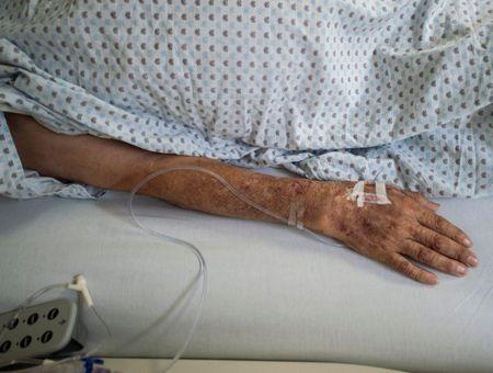 Covid-19 : le tocilizumab réduit le risque de décès, selon une étude