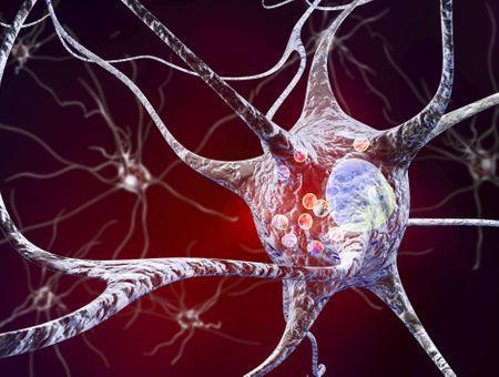 Covid-19 : des risques accrus de maladie de Parkinson ?
