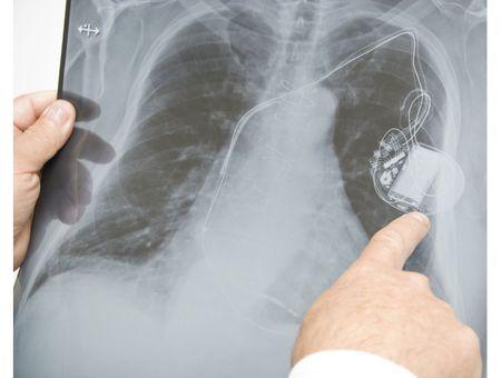 """Durée de vie des pacemakers : deux cardiologues britanniques crient au """"scandale"""""""