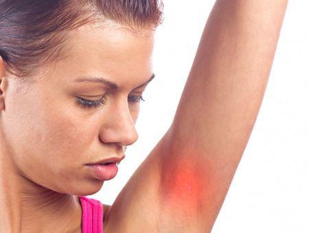 Psoriasis : des symptômes aux traitements