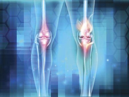L'arthrite, une atteinte inflammatoire des articulations