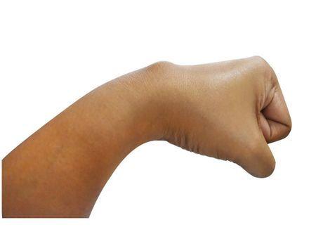 Kyste synovial : une excroissance des articulations souvent bénigne