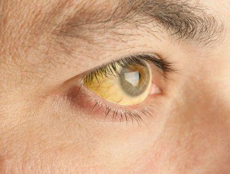 Hépatite A : causes, symptômes, diagnostic et traitements