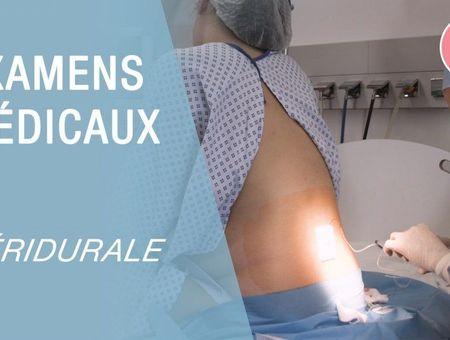 Péridurale : comment ça se passe ?