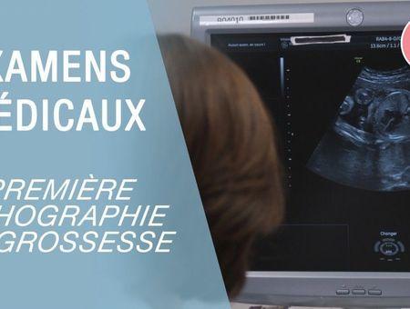 La première échographie de grossesse