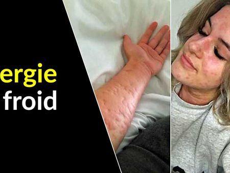 Une allergie au froid… c'est possible ?