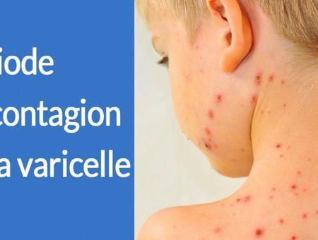 Quelle est la période de contagion de la varicelle ?