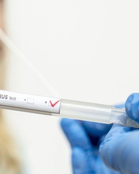 Dépistage de masse du coronavirus : pourquoi la France a-t-elle tardé à le mettre en place ?