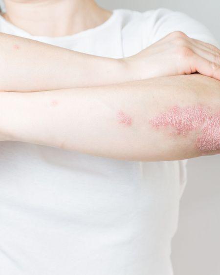 """Psoriasis : """"Beaucoup de patients ne font pas le lien avec leurs douleurs articulaires"""""""