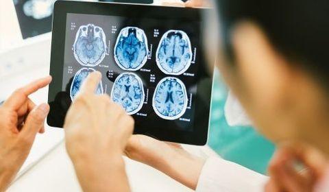 tumeurs cérébrales
