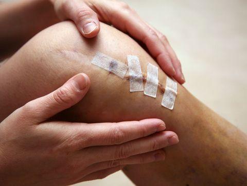 Rupture du ligament croisé du genou