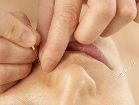 Les atouts de l'acupuncture