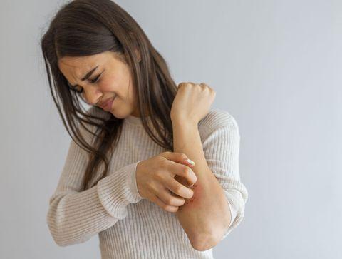 Les allergies cutanées en chiffres