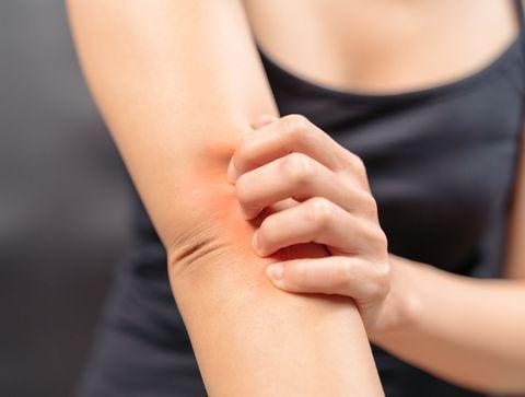Les différentes formes d'allergie cutanée