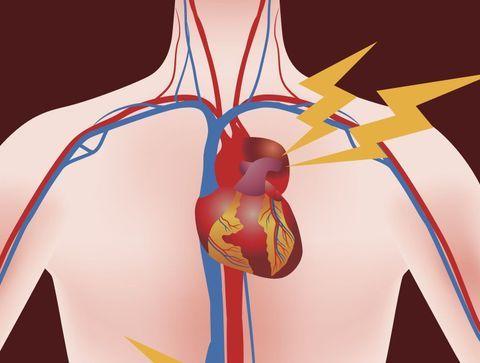 Cholestérol et attaques cardiaques en images