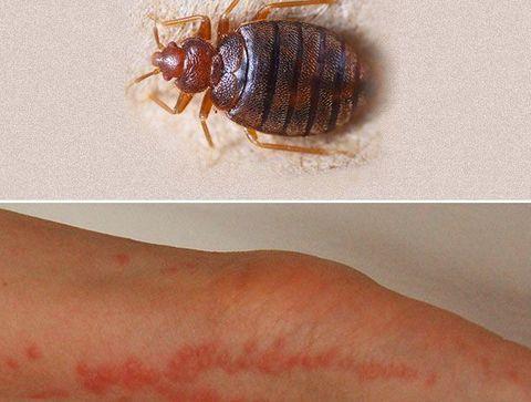 Les Piqures De Punaises De Lit Reconnaitre Les Piqures D Insectes Comment Distinguer Les Differentes Piqures D Insectes